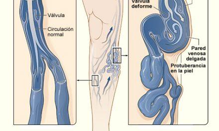 La enfermedad venosa: prevención y tratamiento