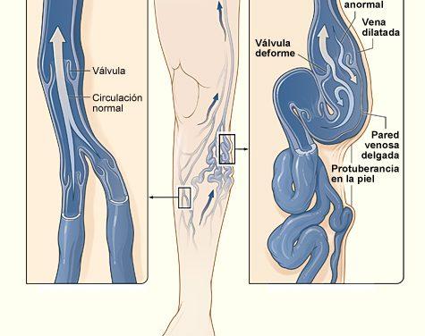 La malaltia venosa: prevenció i tractament