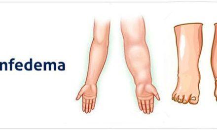 Tratamiento para el Linfedema. Terapia Física Descongestiva (TFD o TDC) – Drenaje Linfático manual