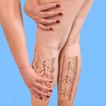 ¿Qué es la dermatitis por estasis o eczema venoso?